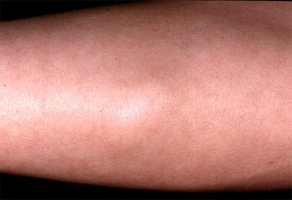 Angiolipoma - Lipoma - Surgical Pathology Criteria ...