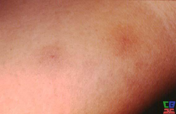 Lymphangioma: Background, Pathophysiology, Epidemiology