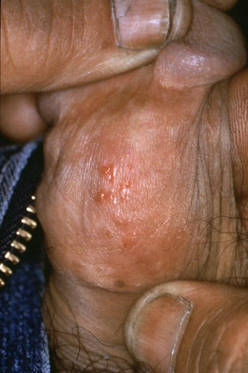 are cold sores type 1 herpes