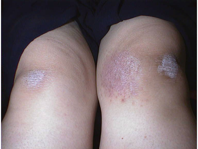 Up to a third of people who have psoriasis will get psoriatic arthritis 2