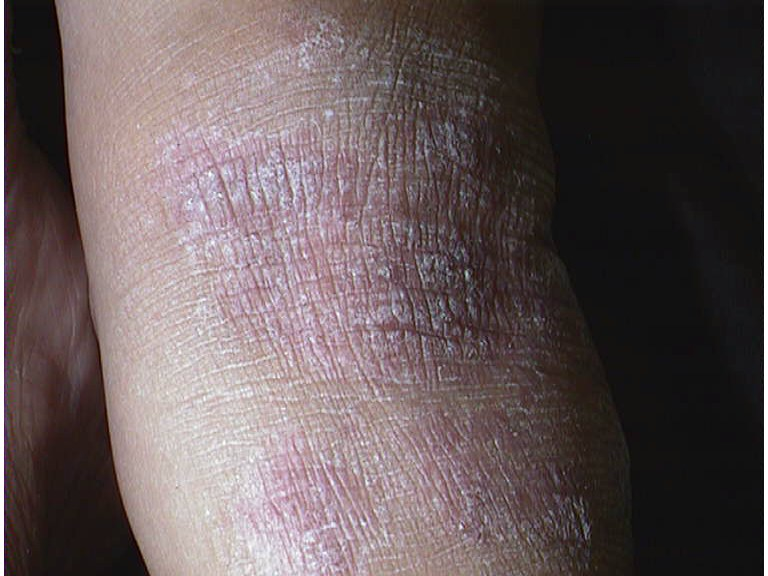 Overweight people with psoriasis may improve their symptoms by shedding some weight, according to a small study 2