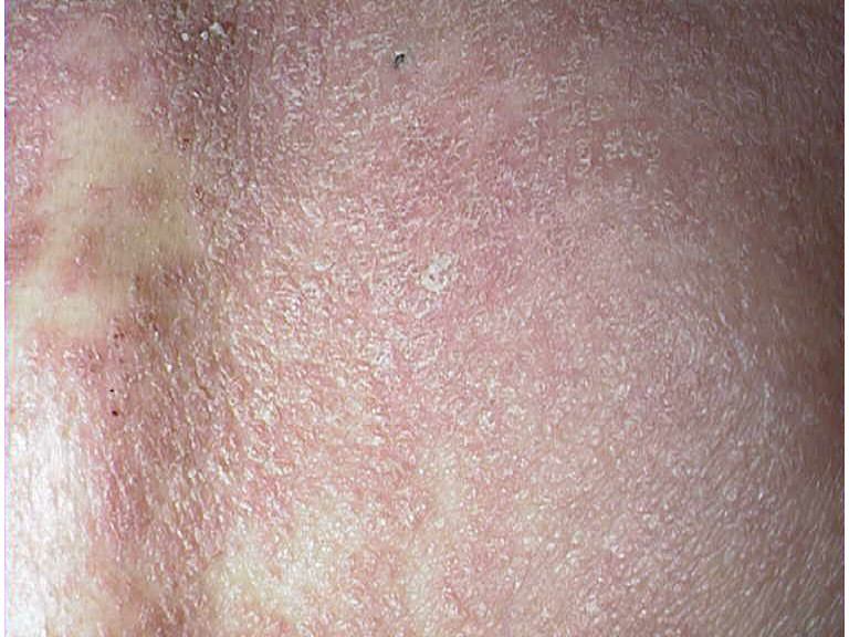 People with stable chronic plaque psoriasis may suddenly progress to unstable psoriasis 2