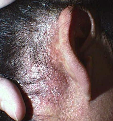 Dermatitis Herpetiformis Photos Scalp