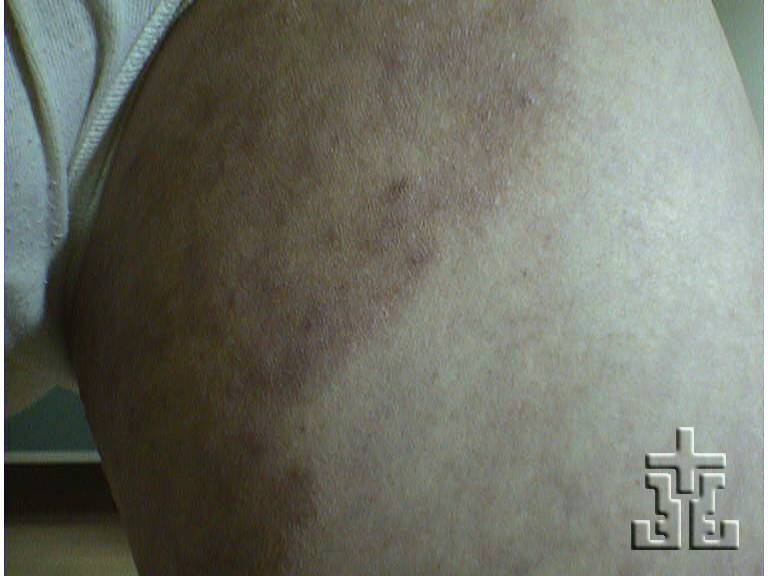 Tinea cruris Symptoms, Diagnosis, Treatments and Causes ...